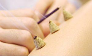 Моксотерапия - лечение теплом.