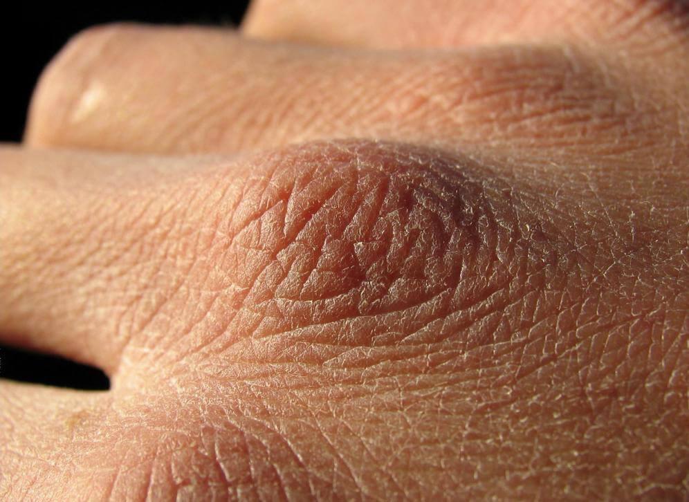 Грубая кожа на фалангах